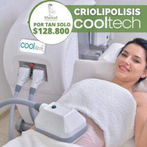 Criolipolisis Cooltech